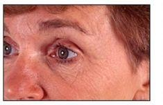 Hyaluronic acid-based wrinkle fillers - Photo before - Dr. med. Nikolaus Linde