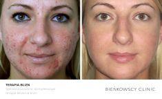 Laser frakcyjny/Fraxel (usuwanie przebarwień, zmian potrądzikowych, odmładzanie skóry) - Zdjęcie przed - Dr Ilona Wnuk-Bieńkowska