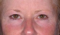Ultherapy - Photo before - Dr. med. Nikolaus Linde