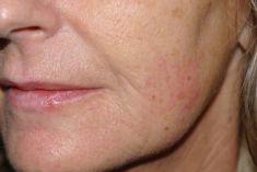 Facelift - Mezonitě - 60 letá pacientka si stěžovala na nerovnosti na bradě způsobené mimikou. Metodou volby byla aplikace botulotoxinové injekce a nebo výplň kyselinou hyaluronovou. Tyto řešení jsem zavrhla,pacientka žije v cizině a není často v ČR. Proto jsem se rozhodla pro