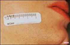 Laserová epilace, depilace - odstranění chloupků - fotka před - Lékařské laserové centrum