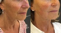 Anti-Aging - Injection d