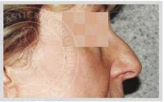 Plastika nosu (Rhinoplastika) - fotka před - MUDr. Otakar Lucák