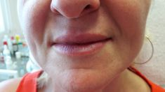Injekčné výplne - Fotka pred - MediDerm & Slim