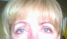 Eyelid surgery (Blepharoplasty) - Photo before