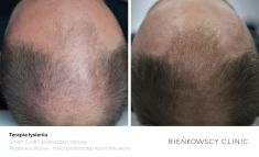 Hair Transplant - Photo before - Dr n. med. Marcin Bieńkowski