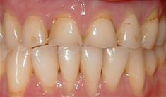 Dental crowns and bridges - Photo before - Bob W. Deason, D.D.S., PA