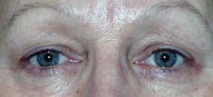 Operace očních víček (Blefaroplastika) - fotka před - MUDr. Martin Kloud
