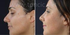 Rinoplastika (operacija nosa) - Fotografija prije