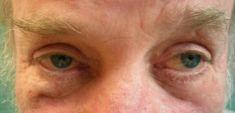 Operace očních víček (Blefaroplastika) - fotka před - MUDr. Robert Remeš