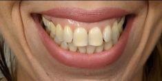 MUDr. Lucia Hrabovská - Úsměv bez odkrytých dásní pomocí botulotoxinu