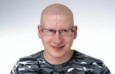 Scalpmann H&H Care Klinika Mikropigmentacji Włosów - Krzysztof lat 32. pochodzi z Krakowa. Zmaga się z łysieniem plackowatym (alopecia totalis). Zabieg wykonany w punkcie zabiegowym w Krakowie przez Krzysztofa Reczyńskiego.