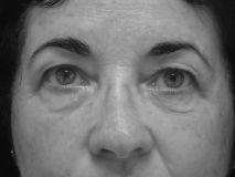 Blépharoplastie - Cliché avant - Dr Thomas Martin