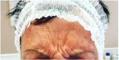 Trattamento delle rughe con botulino - Foto del prima - Dott. Daniele Donnamaria