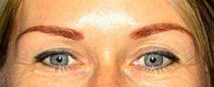 Operace očních víček (Blefaroplastika) - fotka před - MUDr. Jiří Borský Ph.D.
