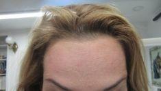 Odstranění vrásek pomocí botulotoxinu - fotka před - LaserPlastic