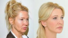 Fadenlifting - Vorher Foto - YES VISAGE Aesthetic medicine and plastic surgery clinic