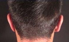 Operazione orecchie (Otoplastica) - Foto del prima - Dr. Luigi Maria Lapalorcia Specialista in Chirurgia Plastica Ricostruttiva ed Estetica