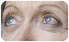 Mezoterapia (revitalizácia tváre, krku, dekoltu, rúk)  - Fotka pred - MEDICAL MKP
