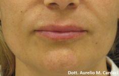 Aumento labbra con Permalip - Impianto Permalip 60x5 labbro sup e 55x5 labbro inf. Post 3 mesi. Si noti la morbidezza della protesi nella mimica.