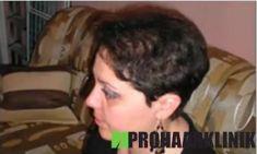 Prohaarklinik - Vorher Foto - Prohaarklinik