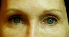 Lifting non chirurgical (Exilis) - Cliché avant - RS Esthétique - Centre d'amincissement & remodelage de la silhouette anti-âge visage et corps sans chirurgie