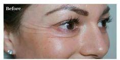 BOTOX® - Usuwanie kurzych łapek botoksem Katowice Klinika Beauty Medica dr Hiacynta Kwiatkowska