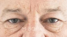 Eyelid surgery (Blepharoplasty) - Photo before - MB CLINIC