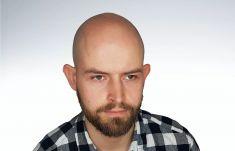 Scalpmann H&H Care Klinika Mikropigmentacji Włosów - Pacjent pochodzi z Krakowa. Łysienie androgenowe. Zabieg wykonany w punkcie zabiegowym w Krakowie przez Krzysztofa Reczyńskiego.