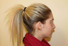 Operace uší (Otoplastika) - Přirozeně zakulacený tvar antihelixu ucha vpravo bez viditelných známek operace.