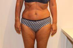 Kavitace ultrazvuková - Kavitace ultrazvuková s kombinací jiných alternativních liposukcí, 10 ošetření, úbytek  9 cm., Beauty studio Dana, Praha 9, Vyzkoušejte a výsledek uvidíte hned.
