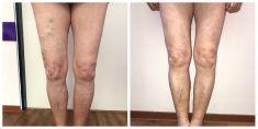 Léčba křečových žil (varixů) - Výsledek odstranění varixů laserem u pacientky (r. 1940), které nebyla klasická operace doporučena, zvolila proto operaci laserem. Operoval MUDr. Radek Vyšohlíd, cévní ambulance VenArt
