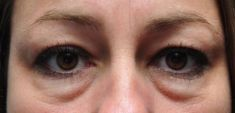 Eye Bags Treatment - Photo before - dr. n. med. Kamil Pietrasik