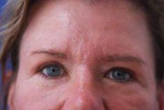 Eyelid surgery (Blepharoplasty) - Photo before - Dr. med. Annett Kleinschmidt