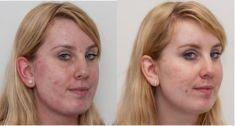 Odstranění jizev po akné - fotka před