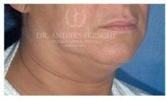 Chin Liposuction - Photo before