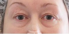Eyelid surgery (Blepharoplasty) - Photo before - Mediestetik, skupina klinik