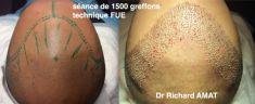 Dr AMAT - ????Greffe FUE 2.0 Medic Xpert - Cliché avant - Dr AMAT - ????Greffe FUE 2.0 Medic Xpert