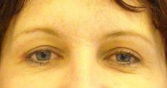 Operace očních víček (Blefaroplastika) - fotka před - MUDr. Karel Urban