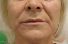 Sculptra - Photo before