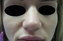 Operácia nosa (Rhinoplastika) - Fotka pred - MUDr. Viliam Jurášek