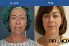Cirumed Clinic - Photo before - Cirumed Clinic