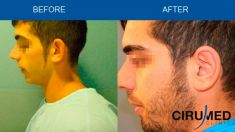 Ear surgery (Otoplasty) - Photo before - Dr. Alexander Amir Aslani