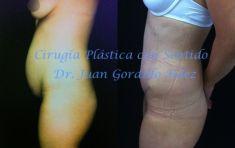 Dr. Juan Gordillo Hernández - Foto Antes de - Dr. Juan Gordillo Hernández