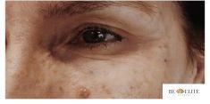 Odstranění kruhů pod očima - fotka před - MUDr. Monika Kavková