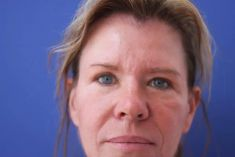 Dr. med. Annett Kleinschmidt - Photo before - Dr. med. Annett Kleinschmidt
