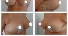 Modelace prsou (Breast-lift) - fotka před - Plastická a estetická chirurgie Poděbrady - prim. MUDr. Veliký