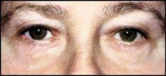 Operace očních víček (Blefaroplastika) - fotka před - prim. MUDr. Robert Čáp Ph.D.