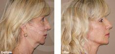 Lifting facial - Foto Antes de - Ocean Clinic Marbella