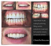 Ceramic facets - veneers - Photo before - ClinicForYou